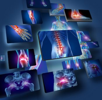 Stem Cell Therapies in Colorado